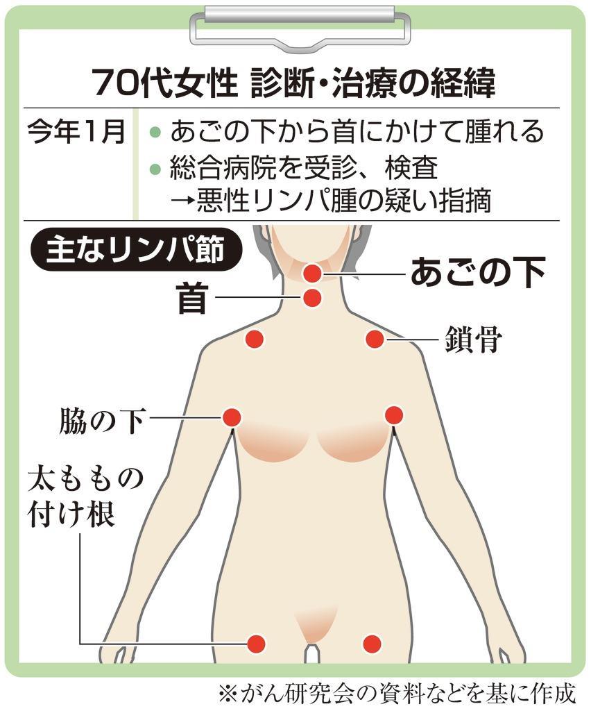 腫れ 顎 リンパ 頚部の病気