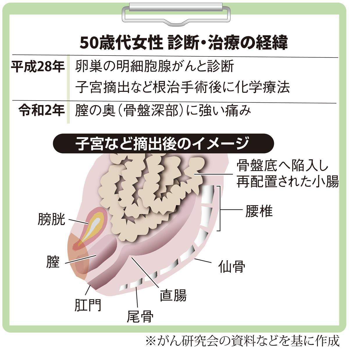 卵巣 摘出 後 の 体調